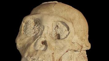 Secrets of an Ancient Skull