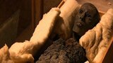 King Tut's Mysterious Death Examined