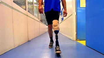 I Didn't Know That: Prosthetic Leg
