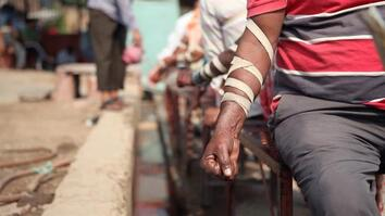 WATCH: The Practice of Bloodletting in New Delhi