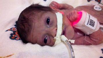Born 4 Months Early, This Tiny Survivor Beats the Odds