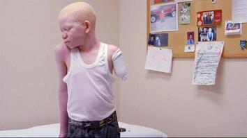 Attacked for Being Albino, Kids Receive Prosthetic Limbs and New Hope