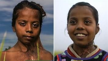 Before and After: How Plastic Surgery Changed This Girl's Life