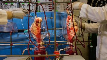 Watch: Pig Lungs Filter Human Blood in a Lab